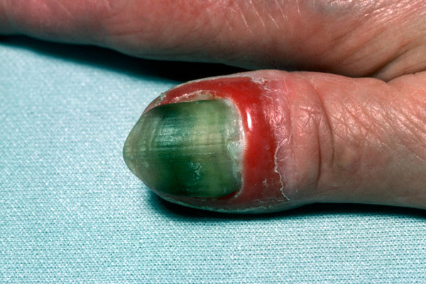 Onycholysis is the separation of a nail from its bed associated with psoriasis, dermatitis of the hand, fungal infection, pseudomonas infection and many other conditions. Photo courtesey of Mediscan.