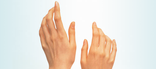 Which Drugs Are More Likely to Induce Raynaud's Phenomenon