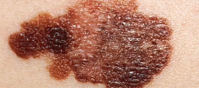 melanom NS