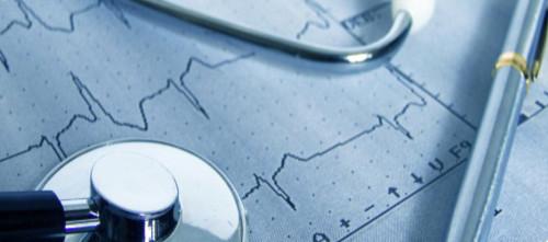 heart ecg arrhythmia