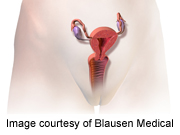 Female Sexual Function Improves After Lesion Surgery