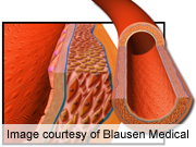 Air Pollution Linked to Marker of Atherosclerosis