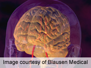 Brain Volume Rebounds Within Days of Alcohol Abstinence