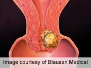 Lexatumumab Tolerated for Pediatric Solid Tumors
