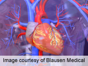 Tight Glycemic Control of Little Value Post-Pediatric Heart Op