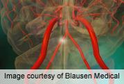 Incidence of Noncarotid Vascular Peri-Op Stroke 0.6 Percent