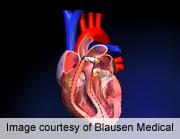 AATS: Low-Dose Warfarin Safe With Bileaflet Mechanical Valve