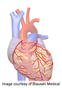 No Gender Effect on PCI Outcome in Acute Coronary Syndrome