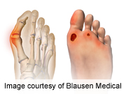Polydeoxyribonucleotide Aids Healing of Diabetic Foot Ulcers
