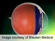 Mechanism of Scarring After Glaucoma Surgery Identified