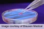 In U.S., Carbapenem-Resistant Enterobacteriaceae Increasing