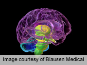 Plasma Glucose Tied to Atrophy in Hippocampus, Amygdala