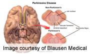 AAN: Submandibular Gland Biopsy Viable to ID Parkinson's