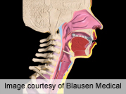 Dysphagia Not Tied to Post-Anterior Cervical Op Swelling