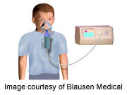 Nebulizers Deliver Less Than Half of Prescribed Asthma Rx in Kids