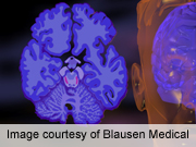 Alzheimer's Trial Participation Linked to Study Partner