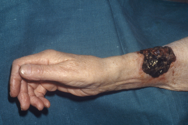 This image is of a dark, pigmented malignant melanoma of the arm.