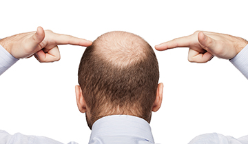 Baldness May Spell Trouble for the Heart