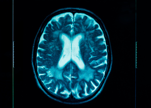 Anticoagulant Therapy: Comparing Subdural Hematoma Risk