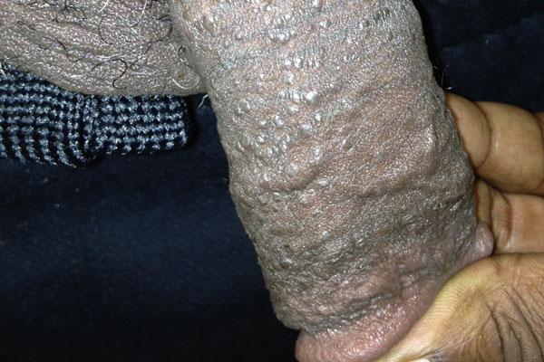Penis papules in Pearly Penile