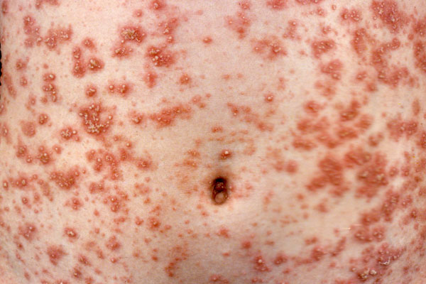 Pustular psoriasis is characterized by clearly defined, raised pus-filled blisters, that cover large swatches of skin and is sometimes accompanied by fever, chills and severe itching. This form of psoriasis can be triggered by pregnancy and medications such as systemic steroids. Flares may also occur after discontinuing certain medications, such as strong topical steroid creams.