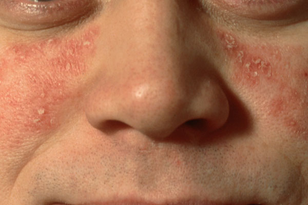 Seborrheic psoriasis is a chronic, hereditary, recurrent dermatosis, characterized by discrete red plaques covered with silvery scales. It results from overactive sebaceous glands in the skin.