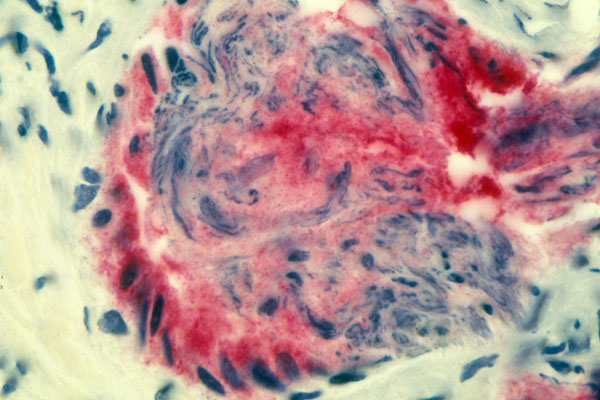 If a patient chooses to undergo prostate cancer screening, a blood test should be performed to measure prostate specific antigen (PSA), a protein produced by prostate cancer cells. This light micrograph shows cells from the prostate gland with PSA dyed red.