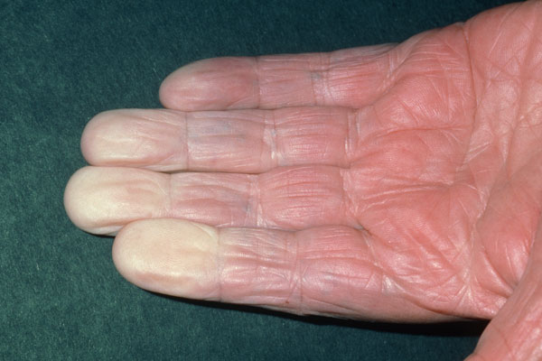 When the skin is affected, patchy skin color is common, and some patients develop Raynaud's phenomenon (pictured here), in which the fingers change color when cold.