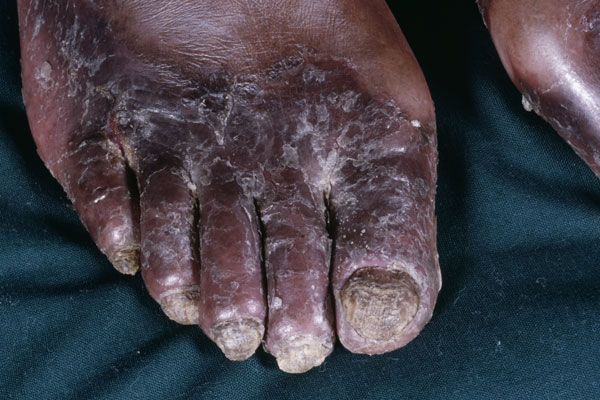 This patient, who lives in a resource-poor area of Africa and lacks access to medications, has an uncommon form of disseminated candidiasis. The majority of patients with HIV will develop one of three forms of mucocutaneous candidiasis: oropharyngeal, esophageal or vulvovaginal. Although easily treated with antifungal medications, candidiasis infections can interfere with medication administration and adequate nutrition intake.