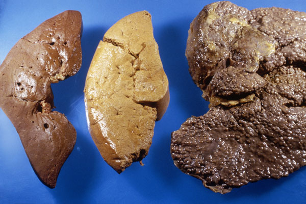 This image shows a healthy liver (left), a fatty liver (center), and a liver with cirrhosis (right), a common and severe hepatitis complication characterized by the replacement of normal tissue with fibrous tissue, and the loss of functional liver cells.