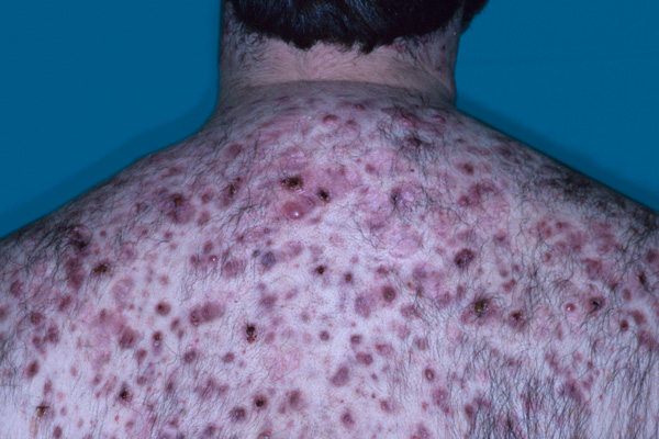 Characteristics of acne fulminans include sudden onset, severe and often ulcerating acne, fever, polyarthritis, and failure to respond to antibacterial therapy.