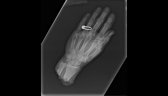 X-rays show the amputated appendage after arrival in the trauma bay