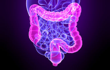 Obesity, Not Diet, Can Trigger Colon Cancer
