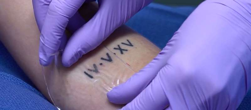 FDA Expands Use of DESCRIBE PFD Patch for Laser Treatment of Tattoos ...