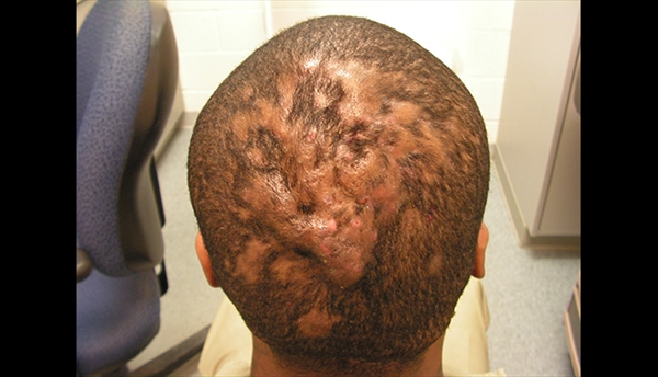 Clinical Challenge: Diffuse Nodularity of the Scalp - MPR