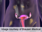 Hysterectomy and Ovary Removal Linked to Diabetes Development