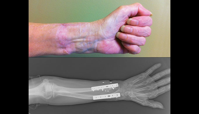 Clinic visit seven months postoperatively shows hand flexion (Figure 7) and follow up x-ray (Figure 8).