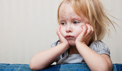 2013 on Track to Becoming Worst Measles Year Since 1996
