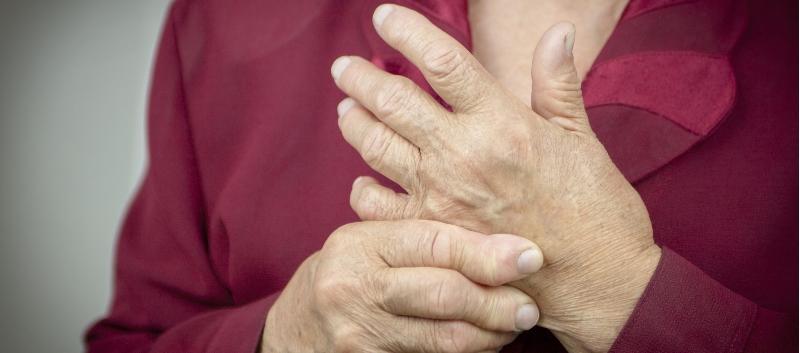 R arthritis
