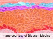 Nonmelanotic Invasive Skin Cancer Tied to Agent Orange