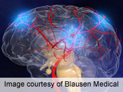AHA: Thrombolysis Shows Potential After Wake-Up Stroke