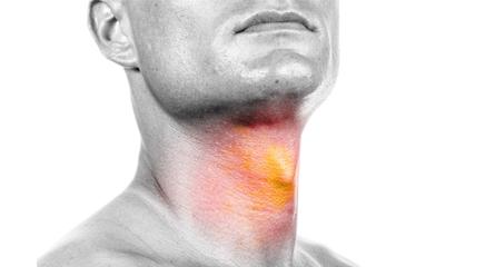 Eosinophilic Esophagitis Can Be Mistaken for GERD