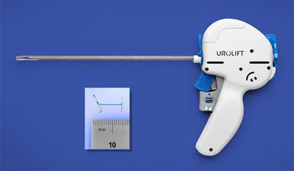 FDA Approves UroLift System for Enlarged Prostate