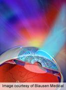 Cerebral Damage Key Risk for Visual Impairment in Preemies