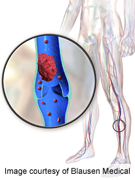 Higher Risk of VTE in CKD Surgical Patients on Enoxaparin