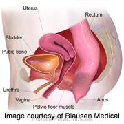 Transvaginal Mesh Op Restores Pelvic Organ Prolapse at Price