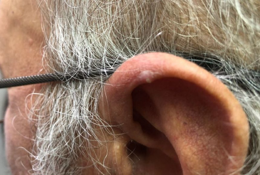 Clinical Challenge: Tender Lesions on the Ear - MPR