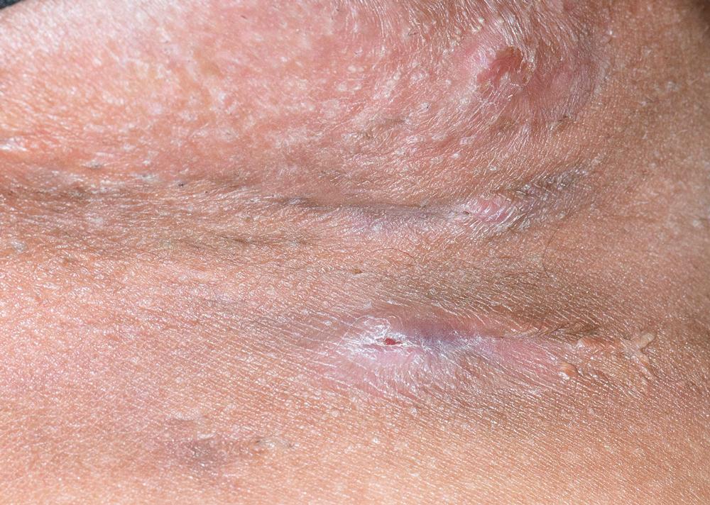 How I Treat: Hidradenitis Suppurativa - MPR