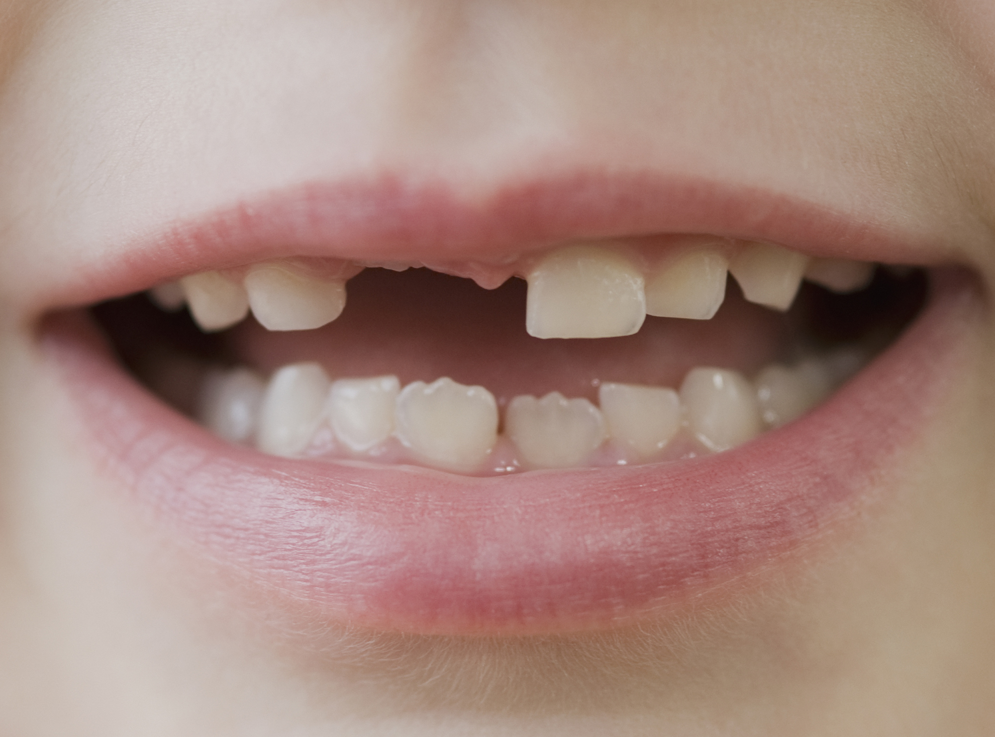 Does Doxycycline Cause Tooth Discoloration in Younger