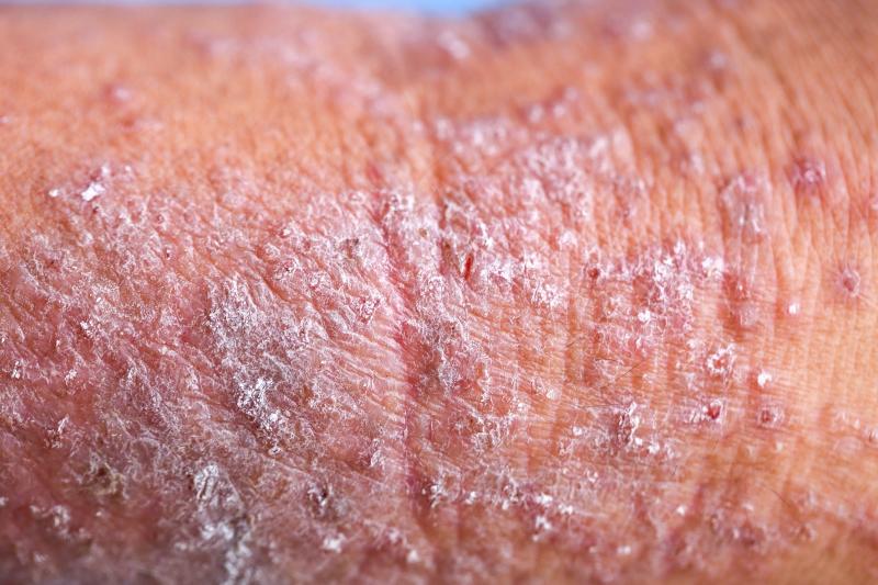 Dermatological Disorders News, Features | Skin Disease